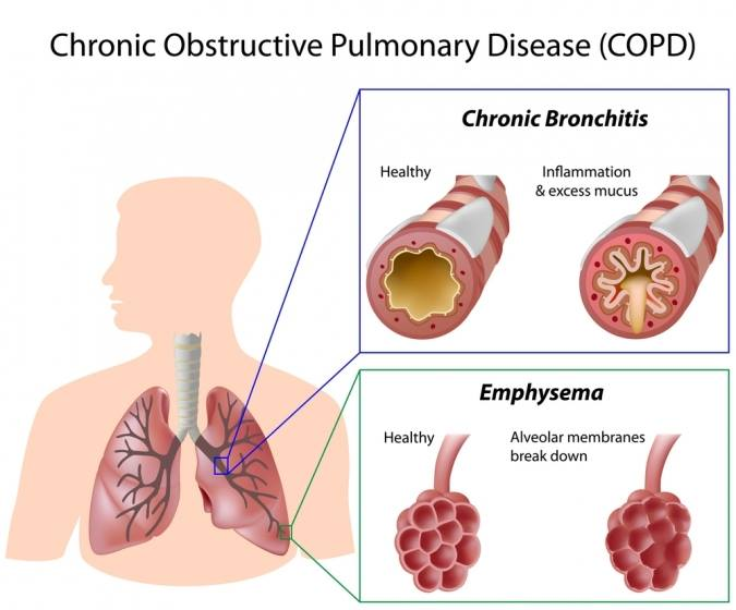 COPD Disorder